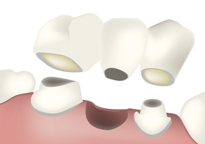 Diagram of a dental bridge from dentist office in Spokane Valley, WA.