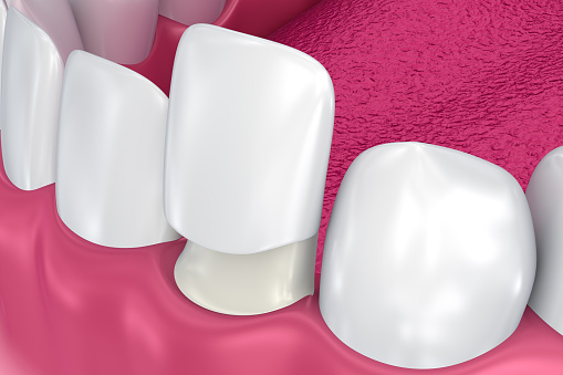Porcelain Veneers at Grins and Giggles Family Dentistry